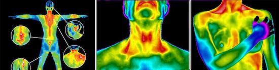 Termografia médica